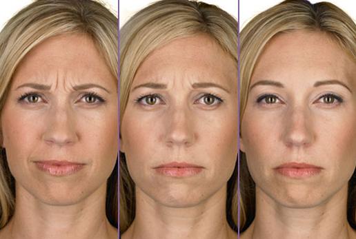 Botox-page